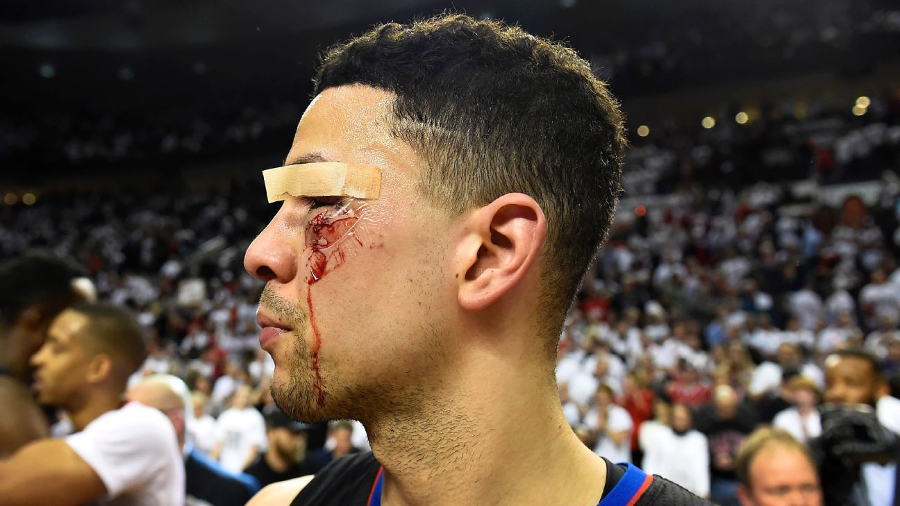 Hair trends for 2017 - Austin Rivers Gets 11 Stitches On Cuts Near Eye Returns