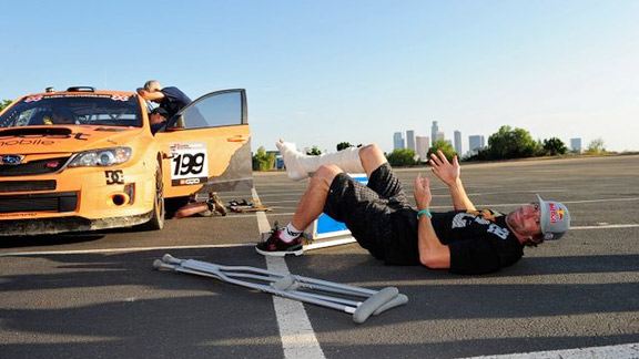 Doctors have recommended that Pastrana keep his leg elevated whenever possible.