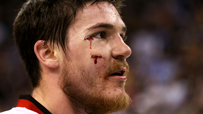 Want these stitches? Restaurateur Grant DePorter paid 6,500 for Andrew Shaw's threads from the 2013 Stanley Cup finals.