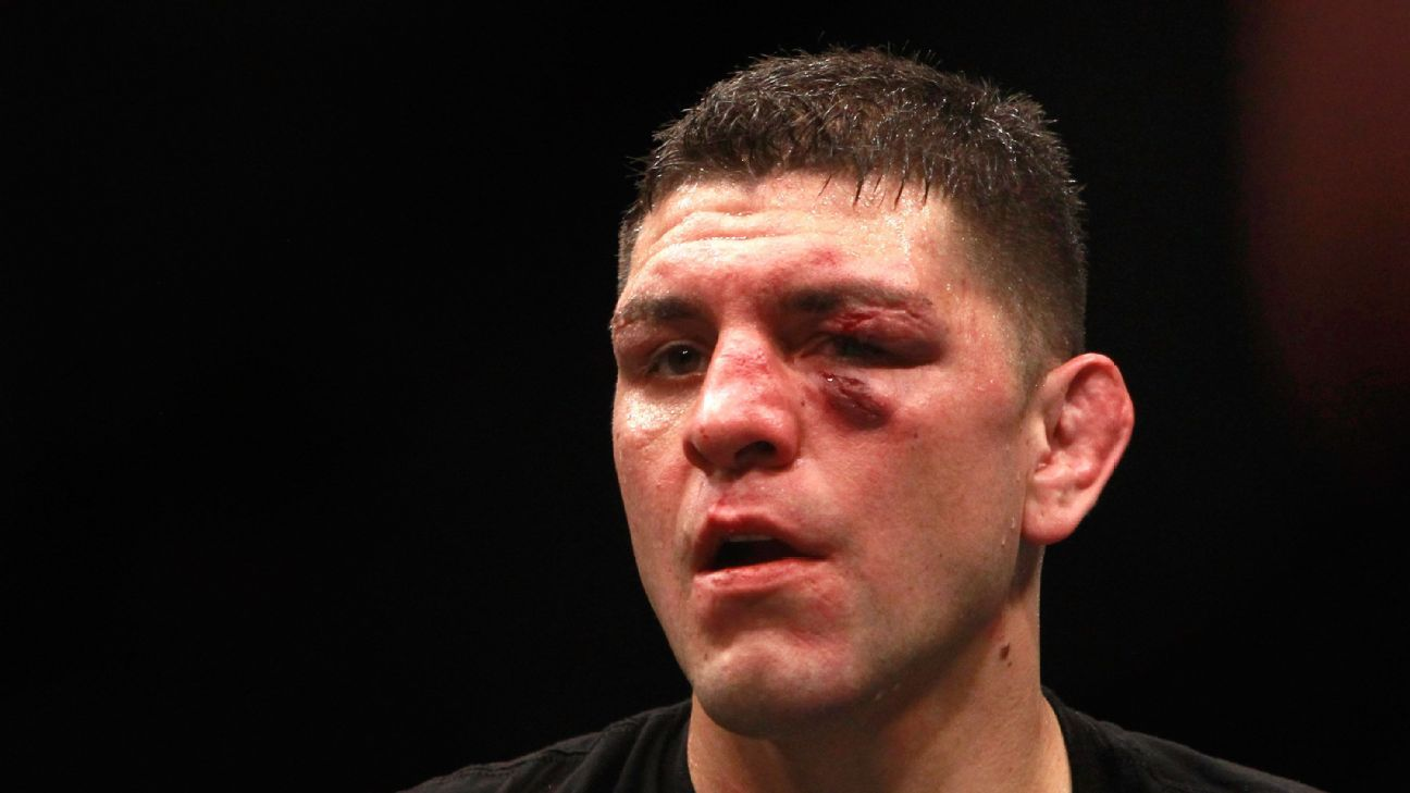 The complicated return of Nick Diaz